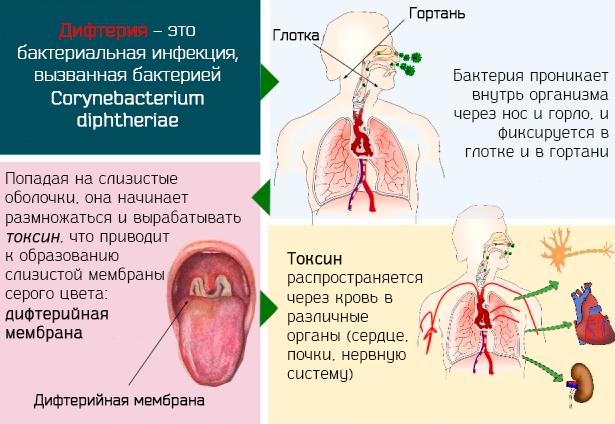 2-ой инцидент заболевания дифтерией в Украине