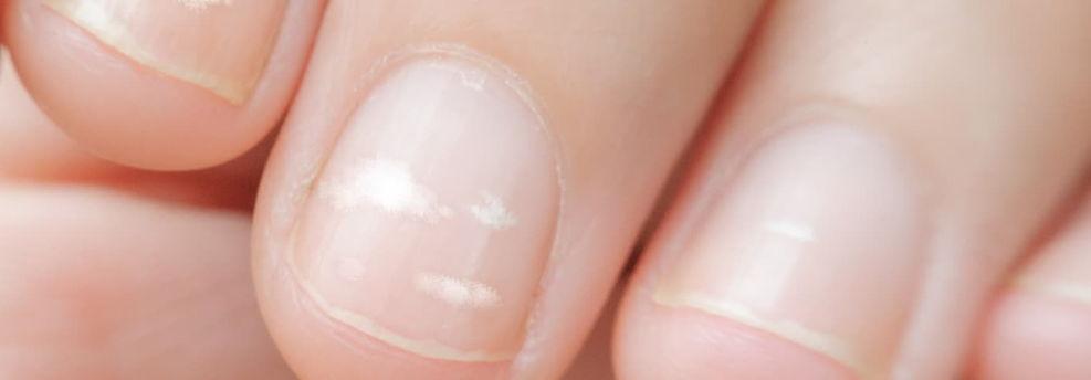 определение болезней по ногтям