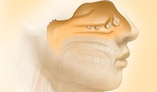 опух нос