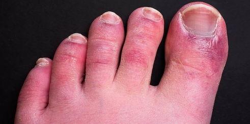 Ковид пальцев стопы
